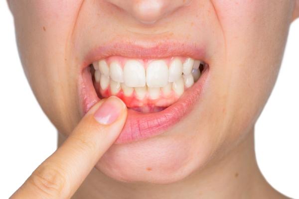 歯茎が健康であること