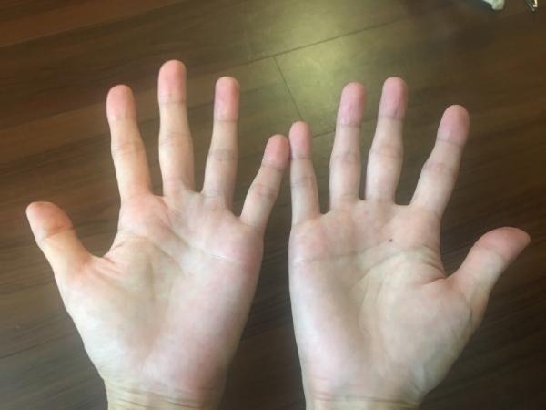 私の手です。つくづくと眺めたことがなかったので、あらためて自分の左手が薄くてしょんぼりしているのにびっくりしました
