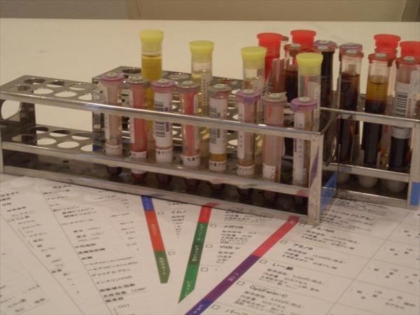 松倉クリニックメディカル栄養療法検査