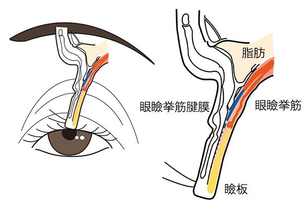 「腱膜性」の眼瞼下垂は、眼瞼挙筋腱膜が伸びたり、瞼板から外れたりして起きるまぶたのたるみの病気。