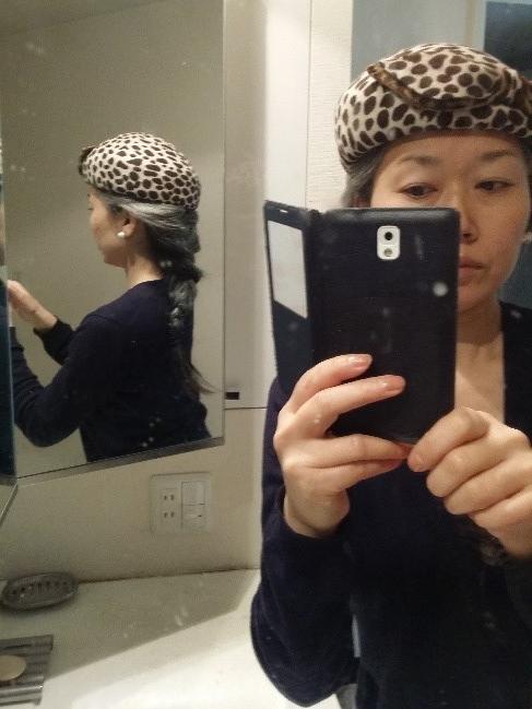 移行期も帽子やヘアアレンジでオシャレを楽みました(山中さん提供)