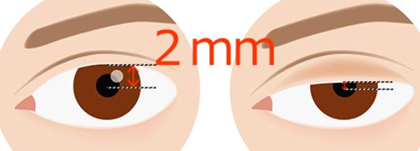 黒目の中心から上瞼の淵までの距離