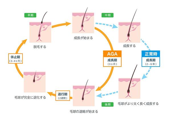 毛根のサイクル