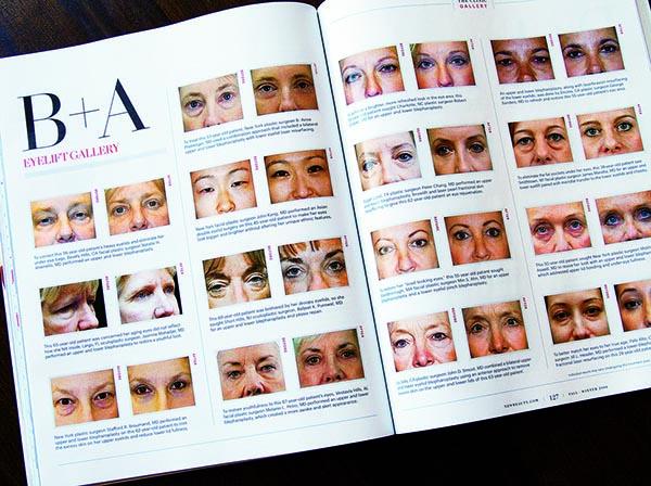 雑誌には、まぶたの整形のビフォア・アフターが並ぶ