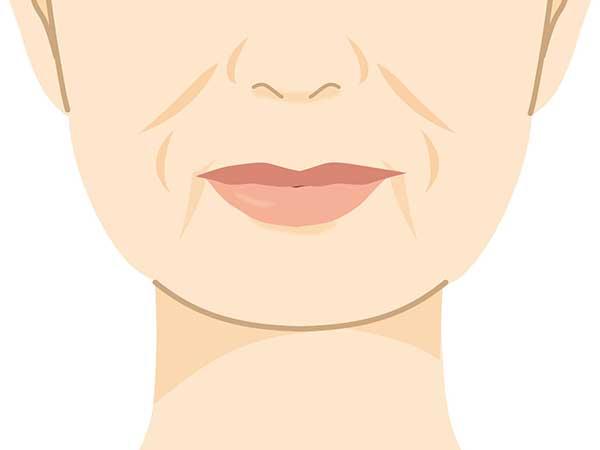 顔の下半分の「ほうれい線・二重あご・マリオネットライン」などに効果的